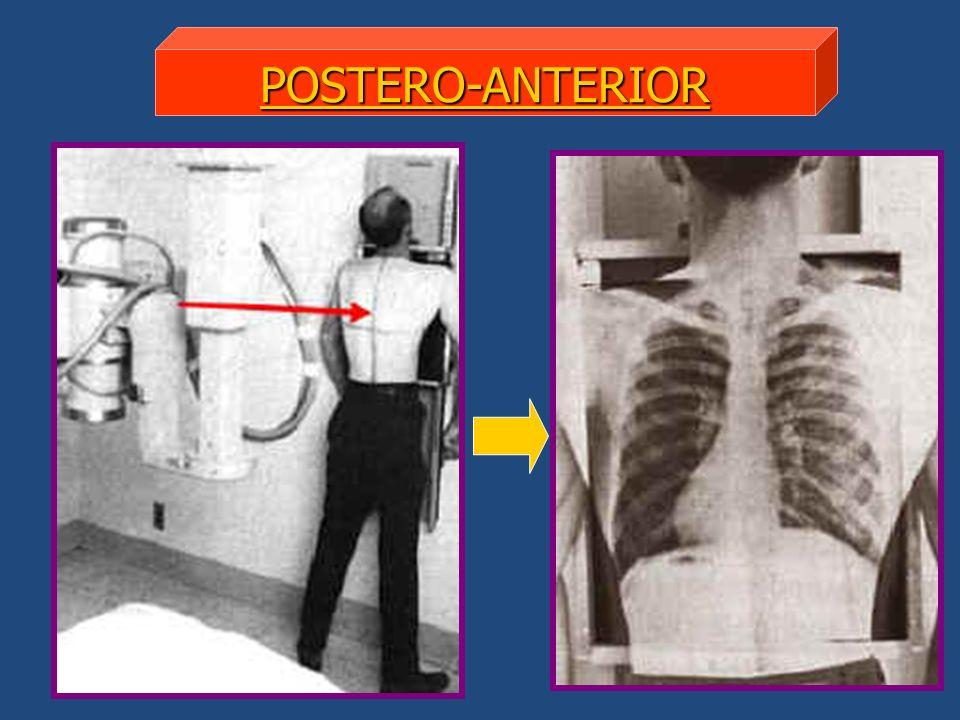 CRITERIOS DE EVALUACIÓN Imagen nítida.Representación completa de pulmones.