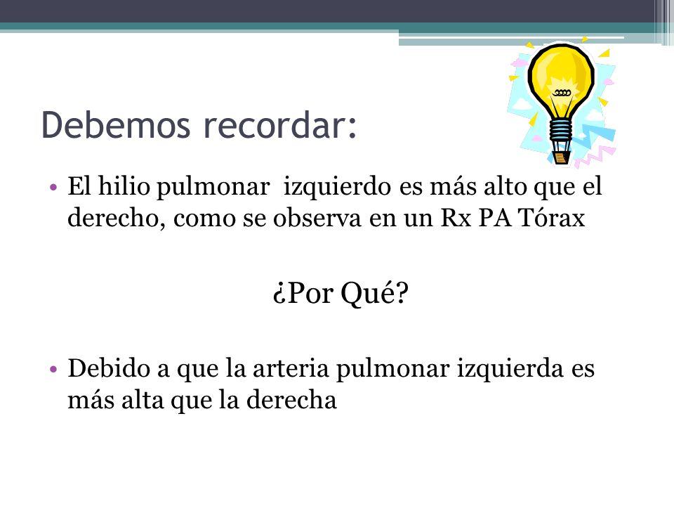 Debemos recordar: El hilio pulmonar izquierdo es más alto que el derecho, como se observa en un Rx PA Tórax ¿Por Qué? Debido a que la arteria pulmonar