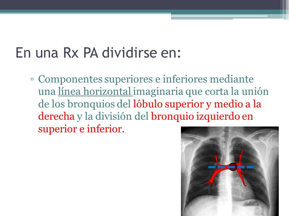 En una Rx PA dividirse en: Componentes superiores e inferiores mediante una línea horizontal imaginaria que corta la unión de los bronquios del lóbulo