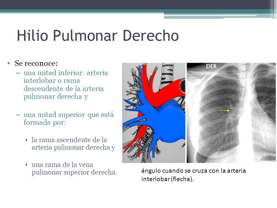 Hilio Pulmonar Derecho Se reconoce: – una mitad inferior: arteria interlobar o rama descendente de la arteria pulmonar derecha y – una mitad superior
