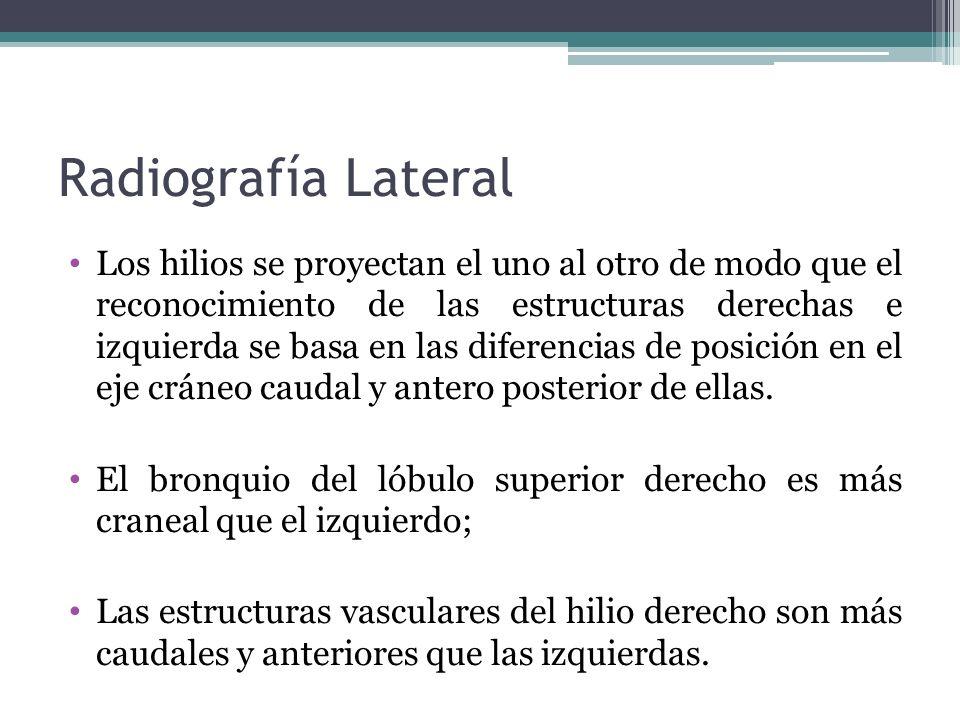 Radiografía Lateral Los hilios se proyectan el uno al otro de modo que el reconocimiento de las estructuras derechas e izquierda se basa en las difere