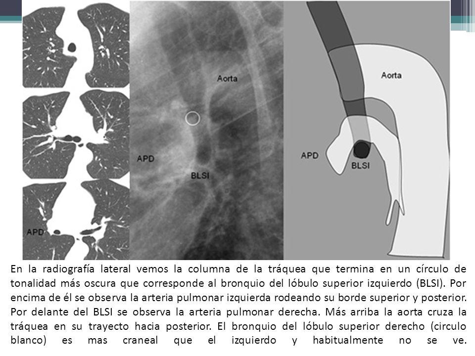 En la radiografía lateral vemos la columna de la tráquea que termina en un círculo de tonalidad más oscura que corresponde al bronquio del lóbulo supe