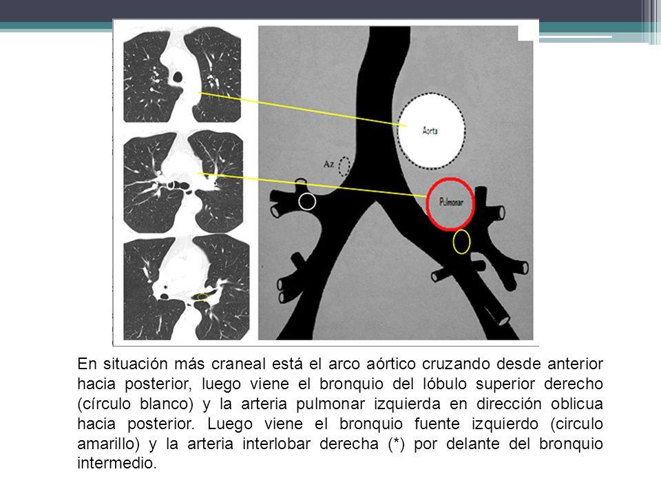 En situación más craneal está el arco aórtico cruzando desde anterior hacia posterior, luego viene el bronquio del lóbulo superior derecho (círculo bl