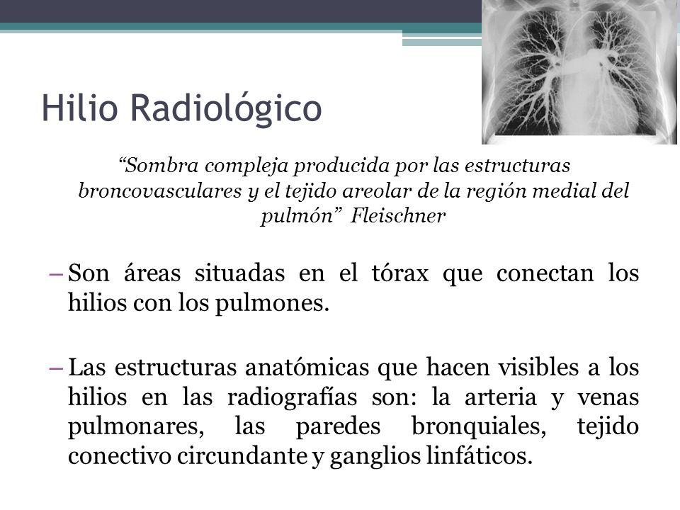 Hilio Radiológico Sombra compleja producida por las estructuras broncovasculares y el tejido areolar de la región medial del pulmón Fleischner – Son á