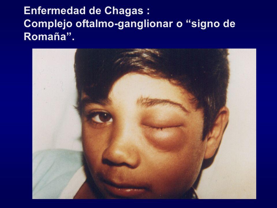 Enfermedad de Chagas : Complejo oftalmo-ganglionar o signo de Romaña.