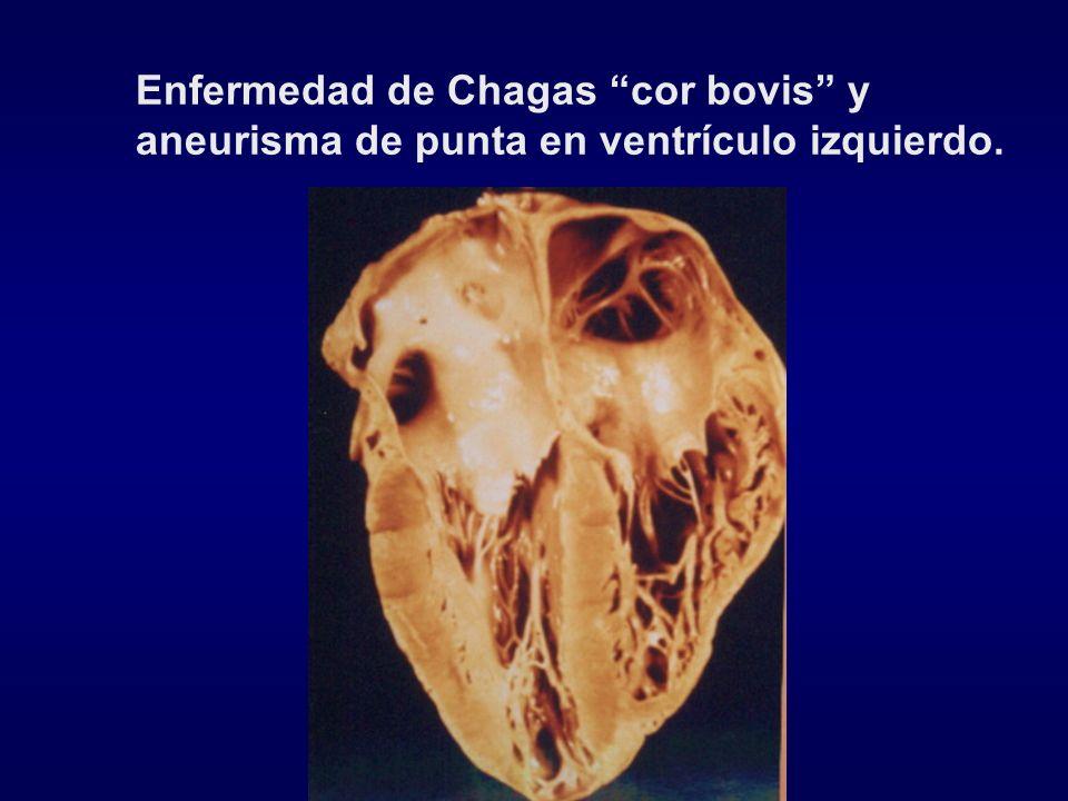 Enfermedad de Chagas cor bovis y aneurisma de punta en ventrículo izquierdo.