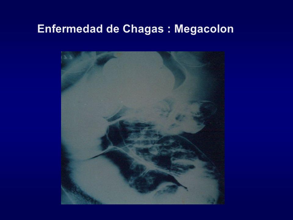 Enfermedad de Chagas : Megacolon