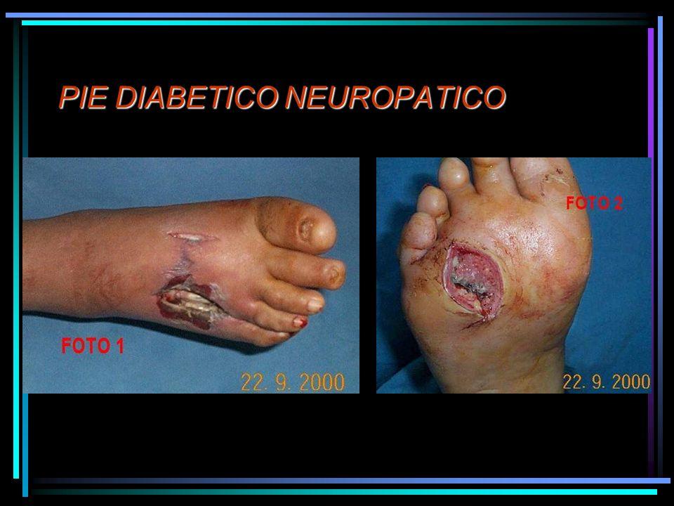 PIE DIABETICO NEUROPATICO