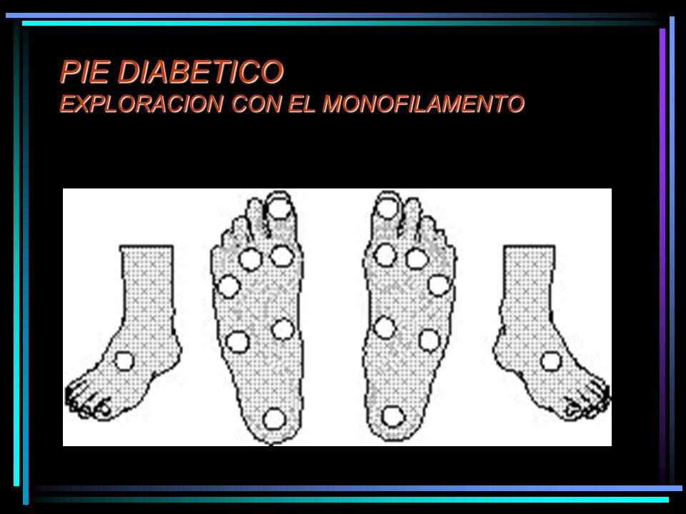 PIE DIABETICO EXPLORACION CON EL MONOFILAMENTO