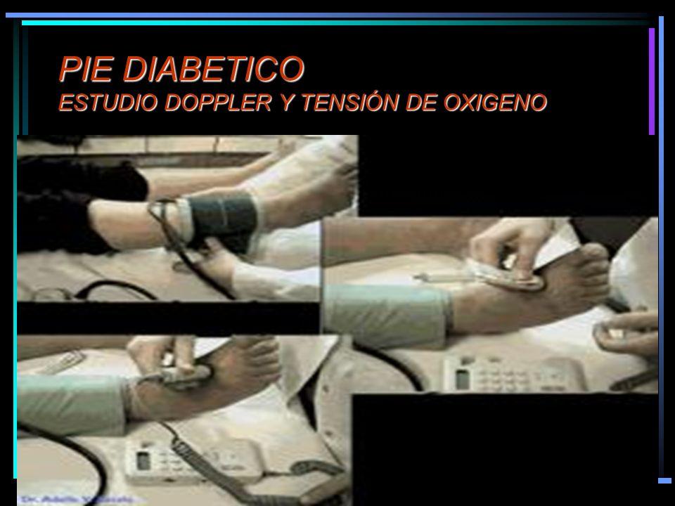 PIE DIABETICO ESTUDIO DOPPLER Y TENSIÓN DE OXIGENO
