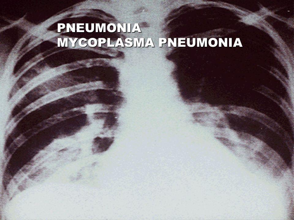 PNEUMONIA MYCOPLASMA PNEUMONIA