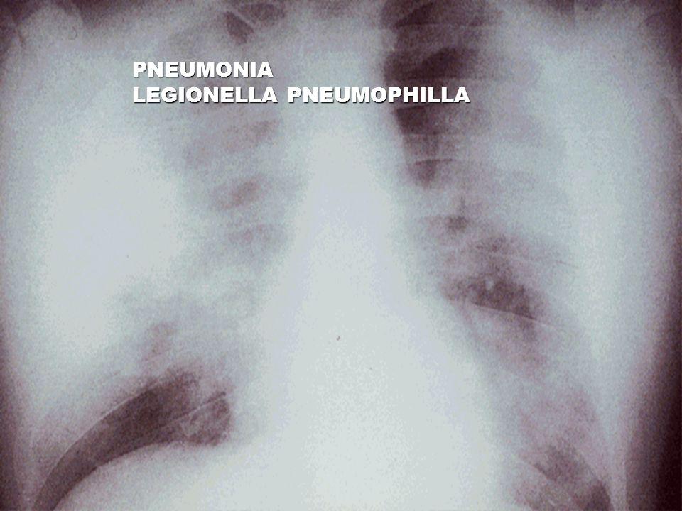 PNEUMONIA LEGIONELLA PNEUMOPHILLA