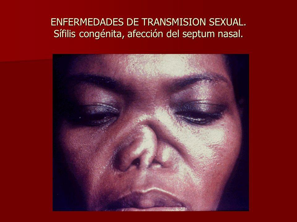 ENFERMEDADES DE TRANSMISION SEXUAL. Sífilis congénita, afección del septum nasal.