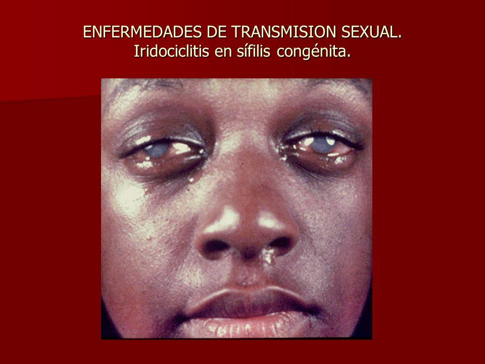 ENFERMEDADES DE TRANSMISION SEXUAL. Iridociclitis en sífilis congénita.