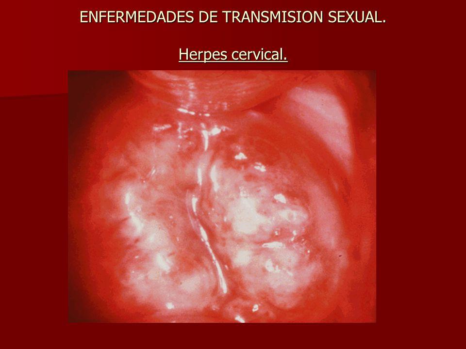 ENFERMEDADES DE TRANSMISION SEXUAL. Herpes cervical.