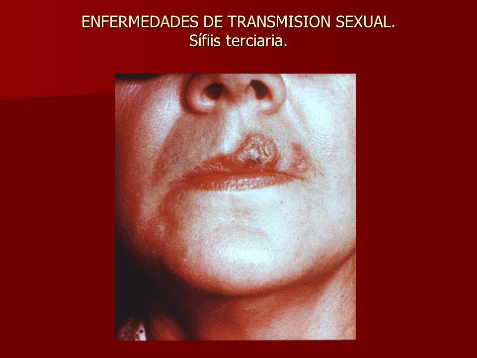 ENFERMEDADES DE TRANSMISION SEXUAL. Sífiis terciaria.