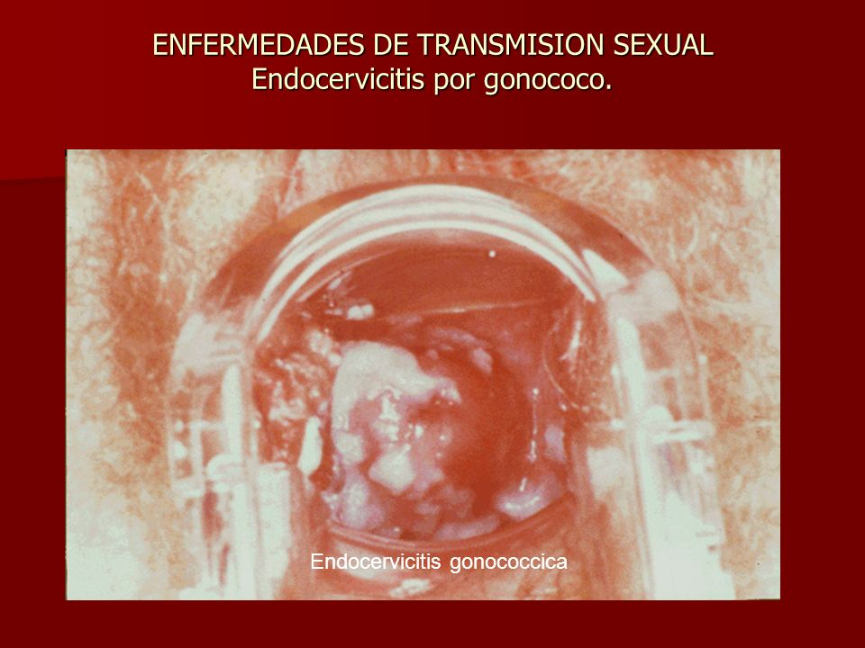 ENFERMEDADES DE TRANSMISION SEXUAL Endocervicitis por gonococo. Endocervicitis gonococcica