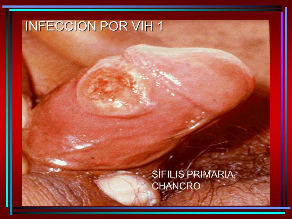 SÍFILIS PRIMARIA, CHANCRO INFECCION POR VIH 1