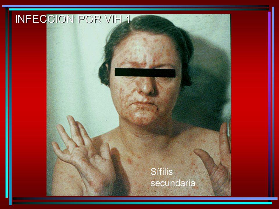 Sífilis secundaria INFECCION POR VIH 1