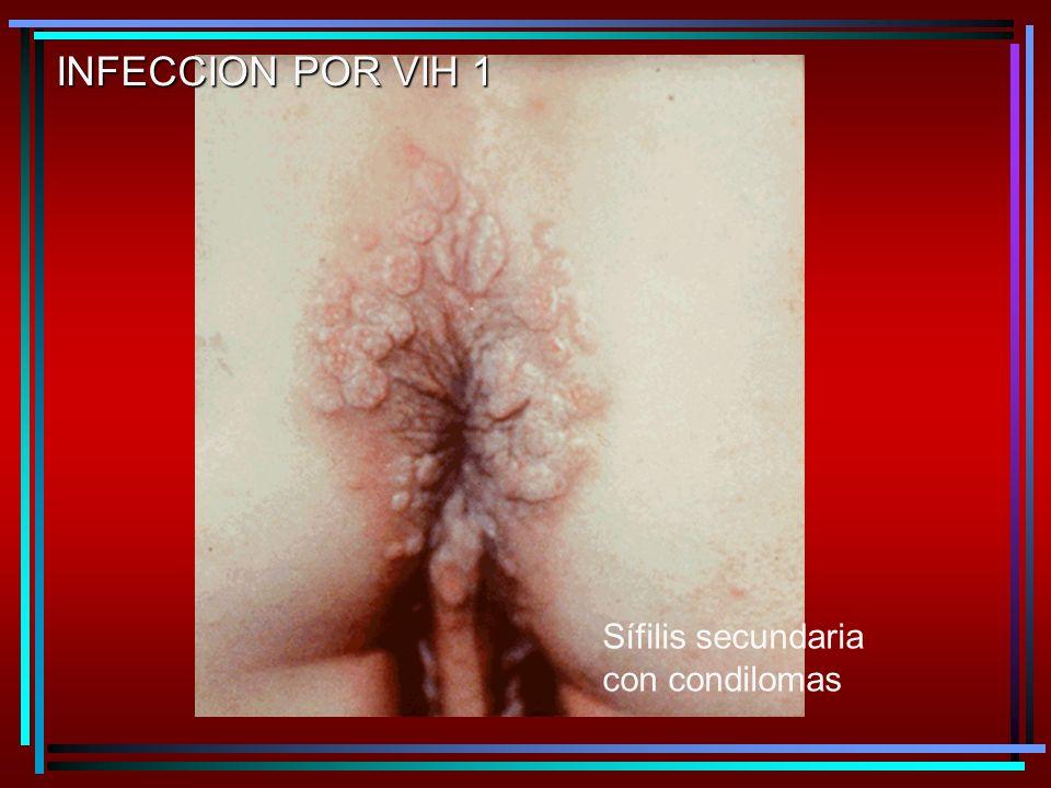 Sífilis secundaria con condilomas INFECCION POR VIH 1