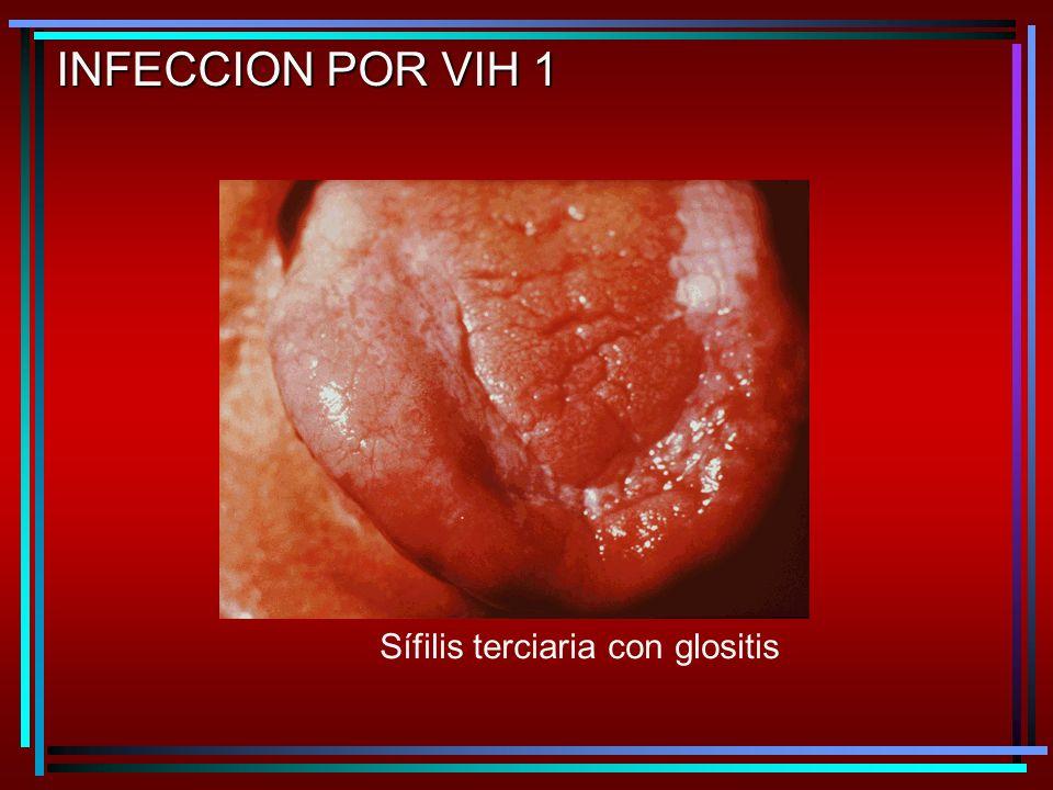 Sífilis terciaria con glositis INFECCION POR VIH 1