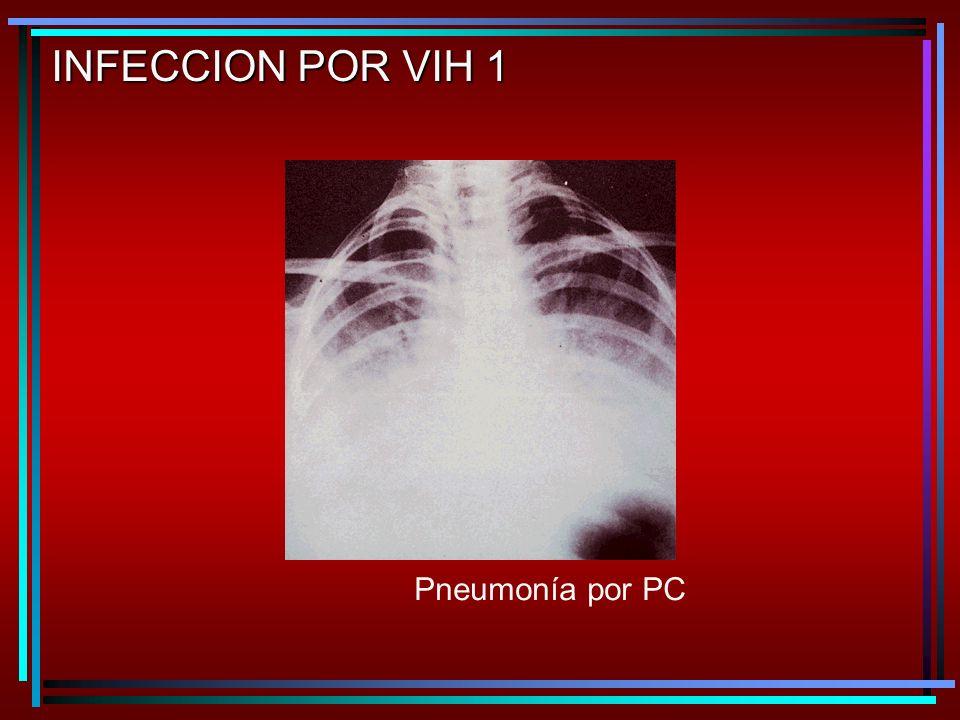 Pneumonía por PC INFECCION POR VIH 1