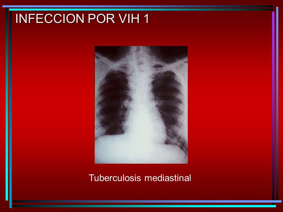 Tuberculosis mediastinal INFECCION POR VIH 1