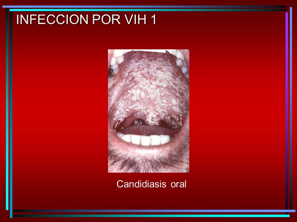 Candidiasis oral INFECCION POR VIH 1