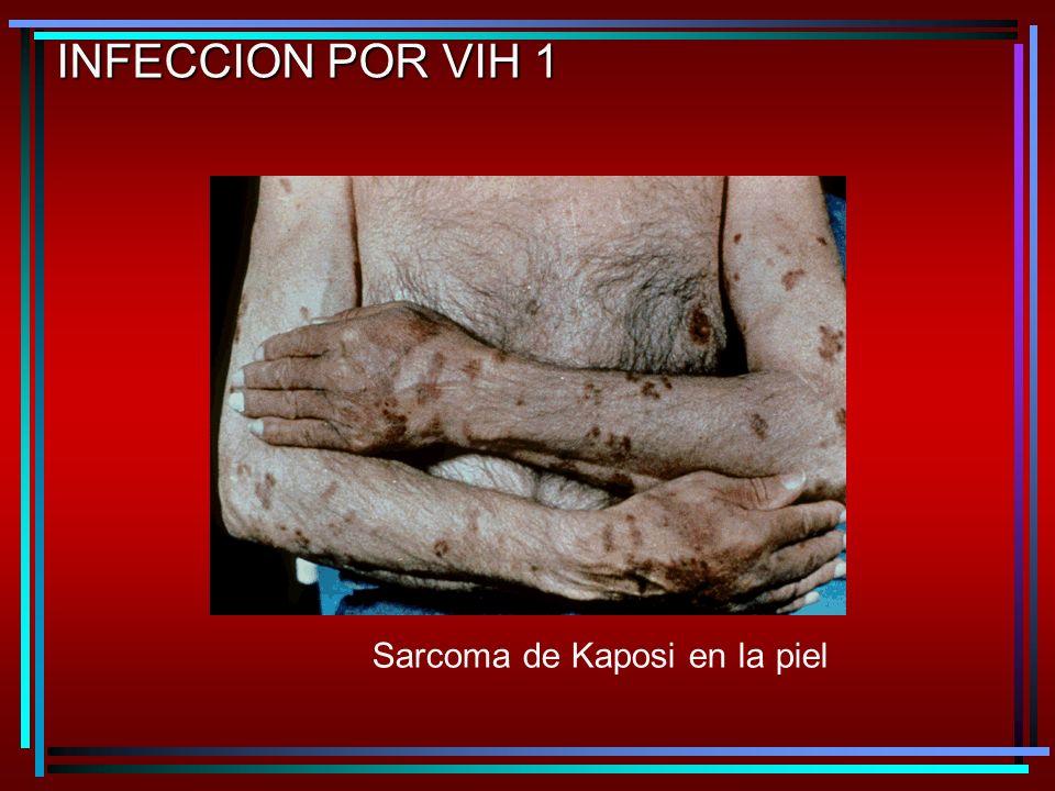 Sarcoma de Kaposi en la piel INFECCION POR VIH 1