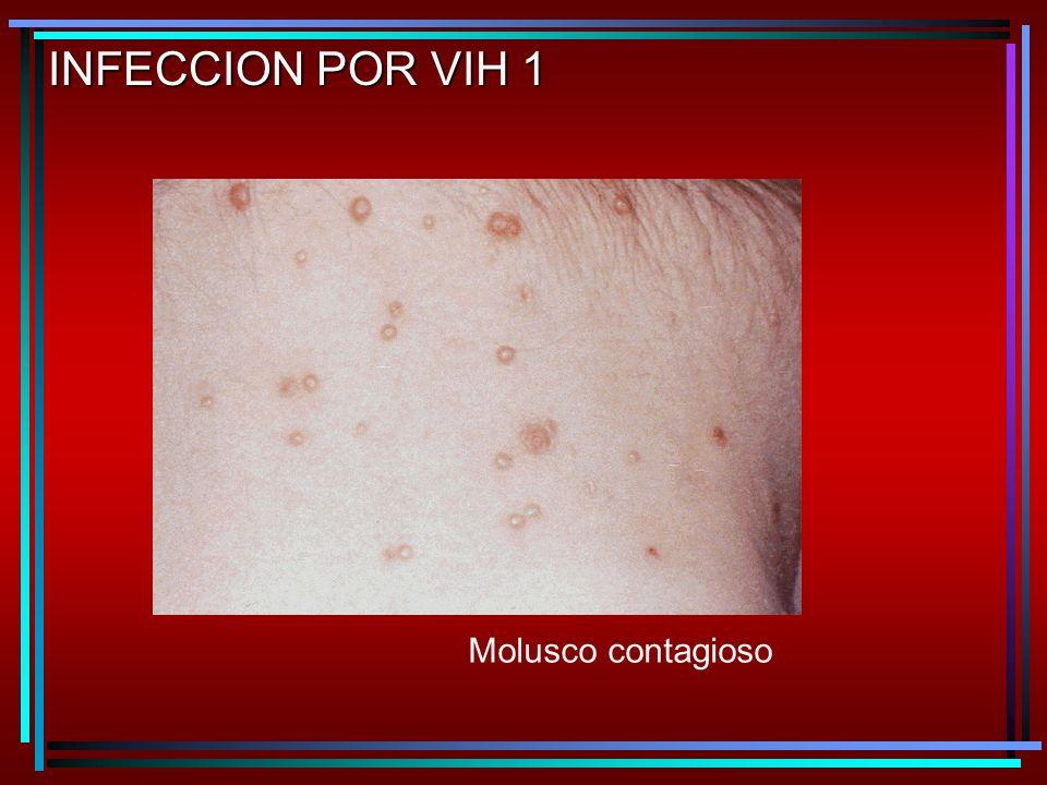 Molusco contagioso INFECCION POR VIH 1