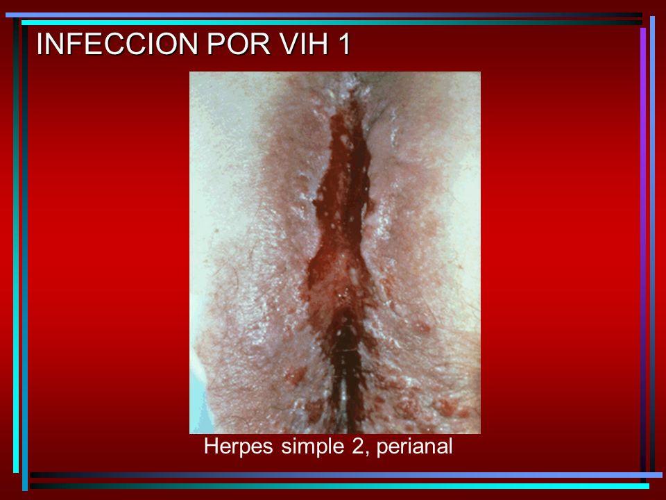 Herpes simple 2, perianal INFECCION POR VIH 1