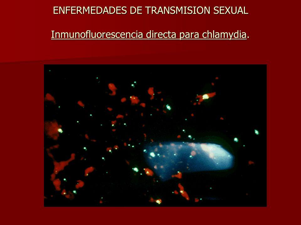 ENFERMEDADES DE TRANSMISION SEXUAL Inmunofluorescencia directa para chlamydia.