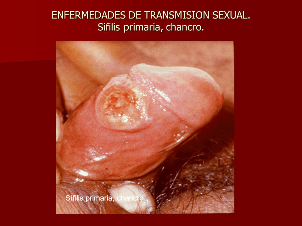 ENFERMEDADES DE TRANSMISION SEXUAL. Sifilis primaria, chancro. Sífilis primaria, chancro