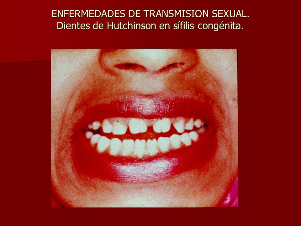 ENFERMEDADES DE TRANSMISION SEXUAL. Dientes de Hutchinson en sífilis congénita.