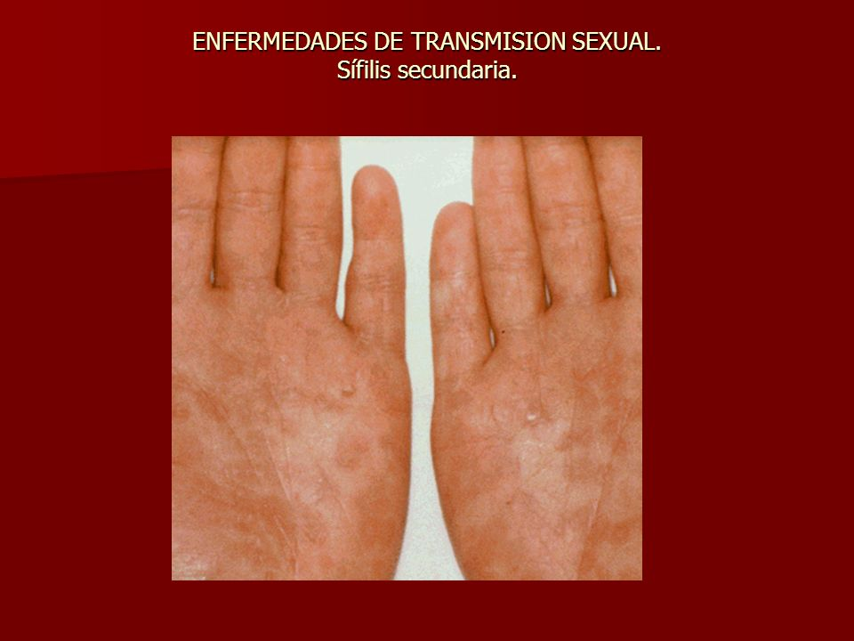 ENFERMEDADES DE TRANSMISION SEXUAL. Sífilis secundaria.