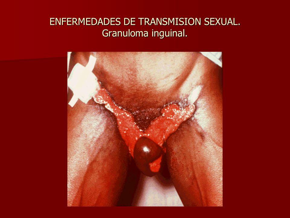 ENFERMEDADES DE TRANSMISION SEXUAL. Granuloma inguinal.