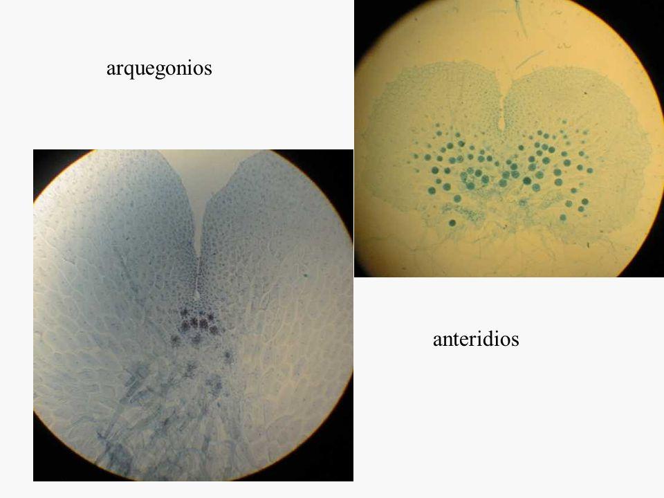 Homosporia, (en general) leptosporangios (en general), filosporia Gametofito Exospórico Anterozoides multiflagelados Embrión prono
