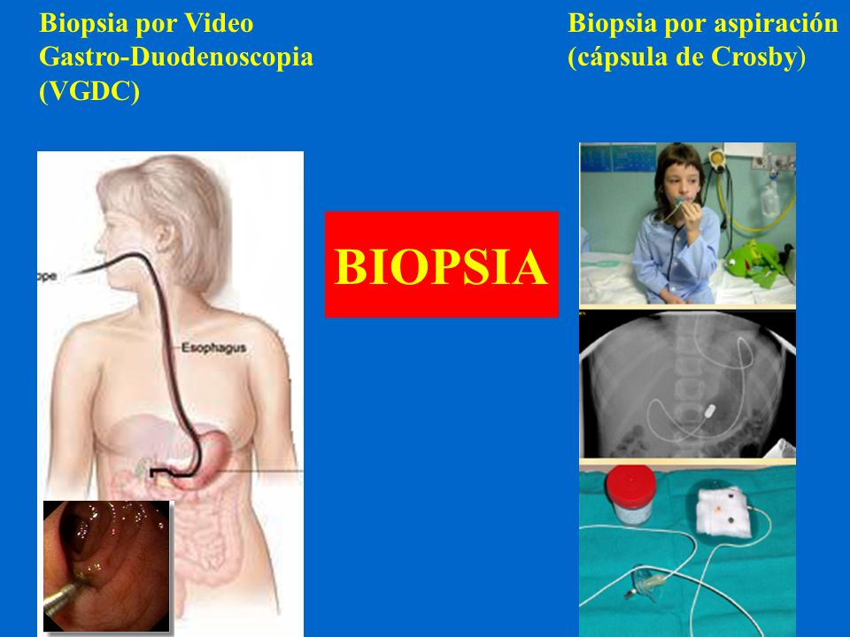 BIOPSIA Biopsia por aspiración (cápsula de Crosby) Biopsia por Video Gastro-Duodenoscopia (VGDC)