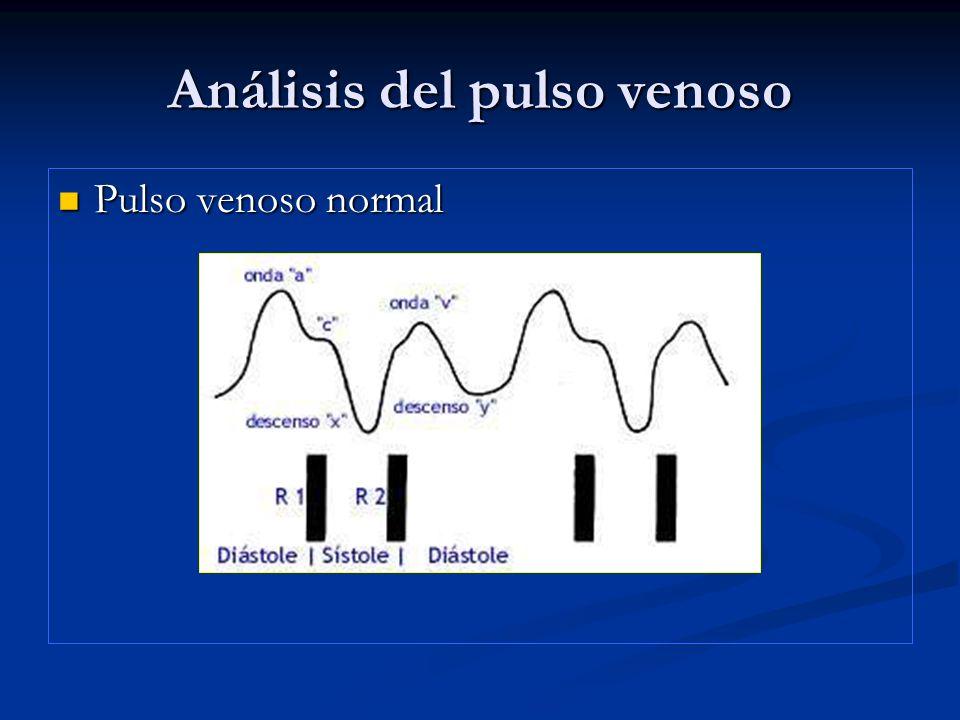 Análisis del pulso venoso ONDA A GIGANTE: ONDA A GIGANTE: *Obstrucción A-V: estenosis Tricuspídea, atresia Tricuspídea.