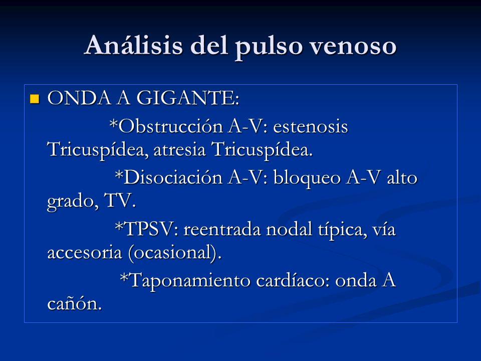 Análisis del pulso venoso ONDA A GIGANTE: ONDA A GIGANTE: *Obstrucción A-V: estenosis Tricuspídea, atresia Tricuspídea. *Obstrucción A-V: estenosis Tr