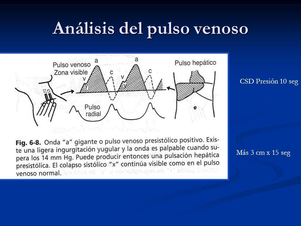 Análisis del pulso venoso CSD Presión 10 seg Más 3 cm x 15 seg