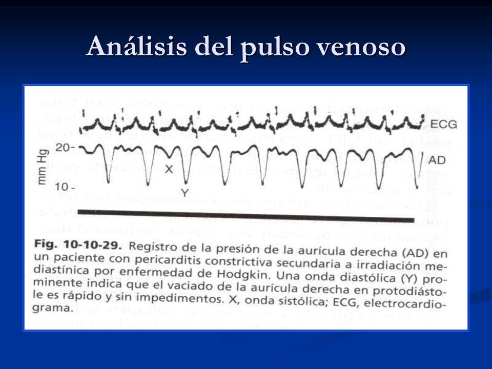 Análisis del pulso Arterial EVALUAR: EVALUAR: * Todas las grandes arterias palpables.