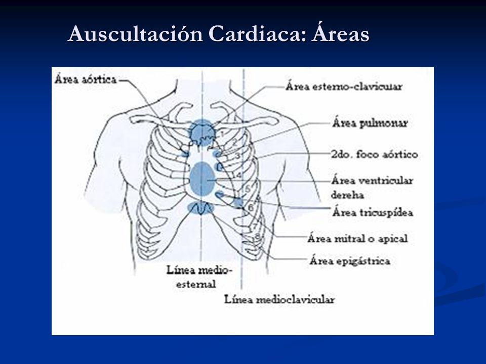 Auscultación Cardiaca: Áreas