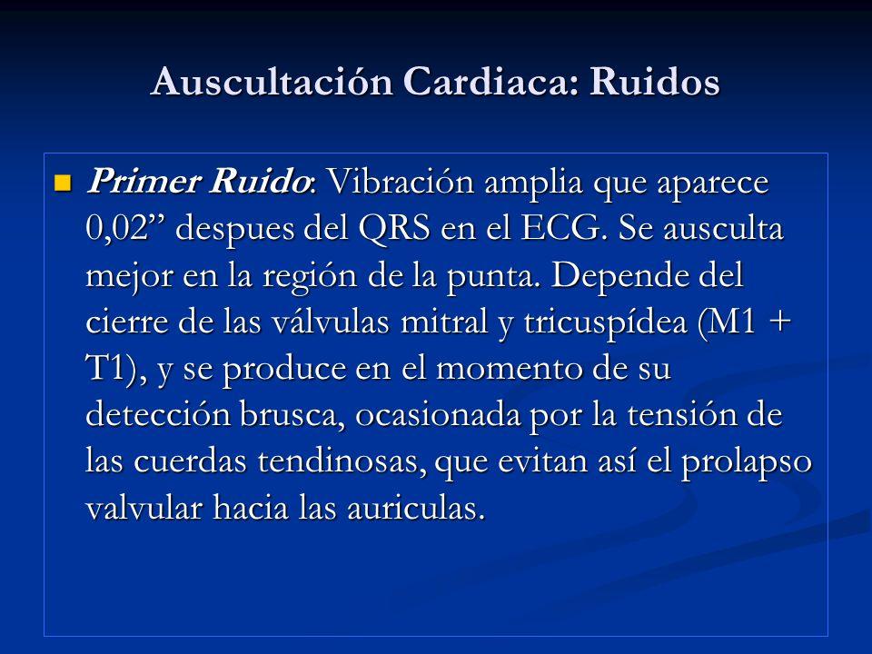 Auscultación Cardiaca: Ruidos Primer Ruido: Vibración amplia que aparece 0,02 despues del QRS en el ECG. Se ausculta mejor en la región de la punta. D