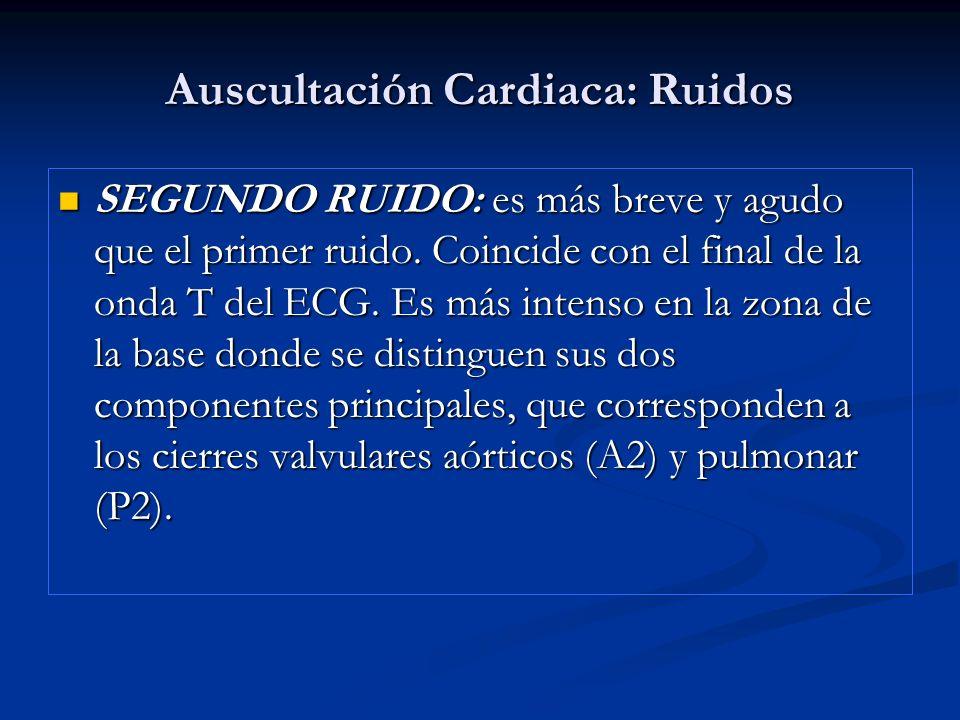 Auscultación Cardiaca: Ruidos SEGUNDO RUIDO: es más breve y agudo que el primer ruido. Coincide con el final de la onda T del ECG. Es más intenso en l