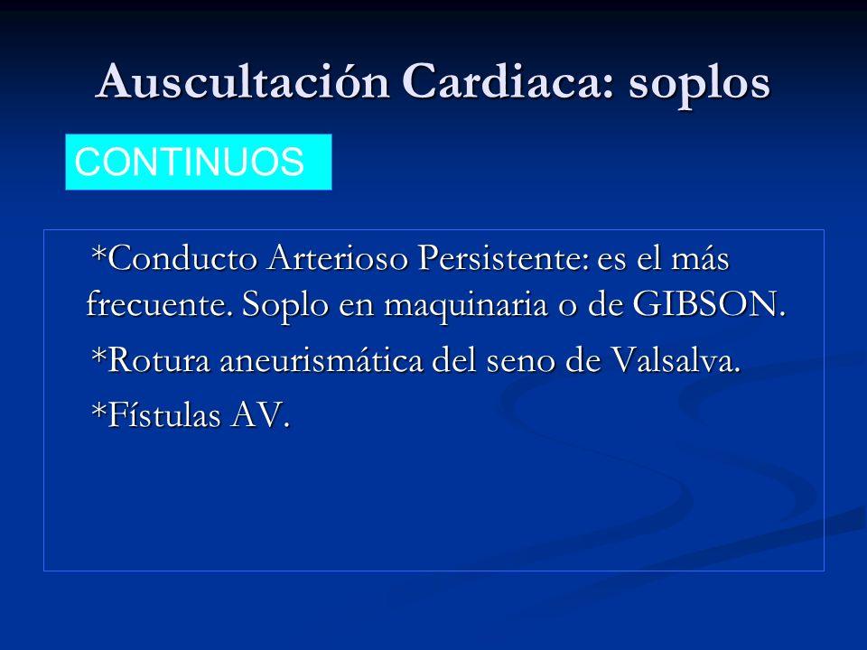 Auscultación Cardiaca: soplos *Conducto Arterioso Persistente: es el más frecuente. Soplo en maquinaria o de GIBSON. *Conducto Arterioso Persistente: