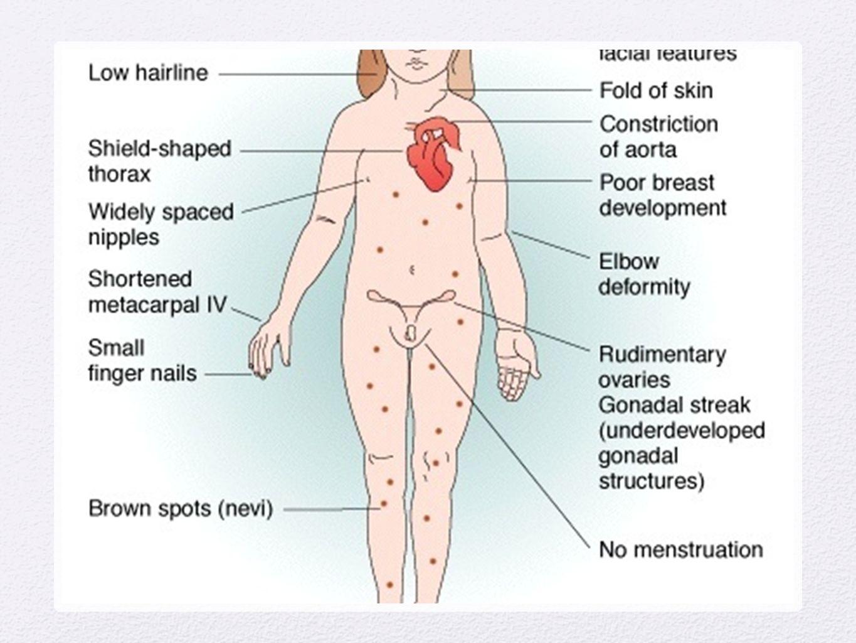 Eyaculacion Aneyaculacion, eyaculacion retrograda, retardada y precoz Numero de eyaculaciones anormales Satisfaccion de la pareja Orgasmo Semen Sx asociados: dolor,sangrado, incontinencia