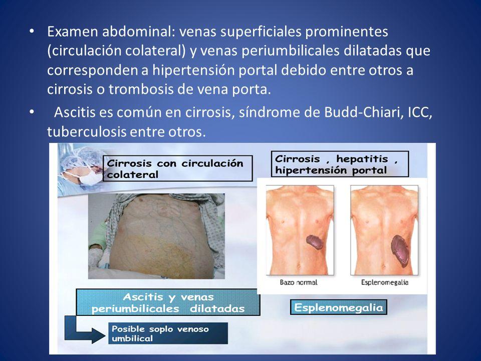 Examen abdominal: venas superficiales prominentes (circulación colateral) y venas periumbilicales dilatadas que corresponden a hipertensión portal deb