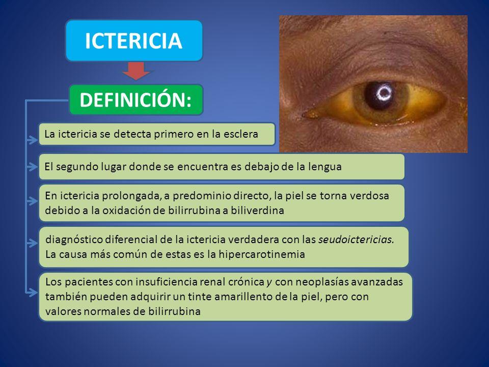 ICTERICIA DEFINICIÓN: La ictericia se detecta primero en la esclera El segundo lugar donde se encuentra es debajo de la lengua Los pacientes con insuf