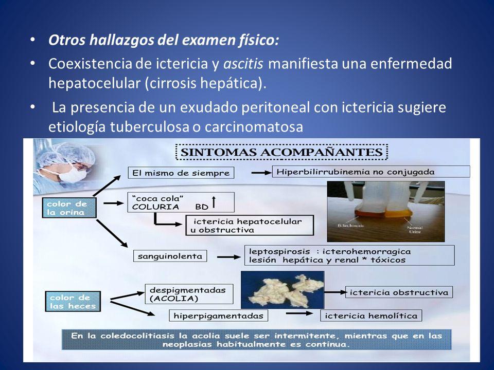 Otros hallazgos del examen físico: Coexistencia de ictericia y ascitis manifiesta una enfermedad hepatocelular (cirrosis hepática). La presencia de un